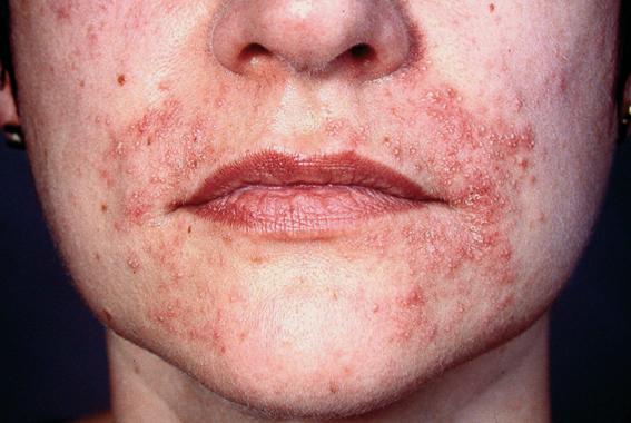 pikkelysömör kezelése az arc bőrén)