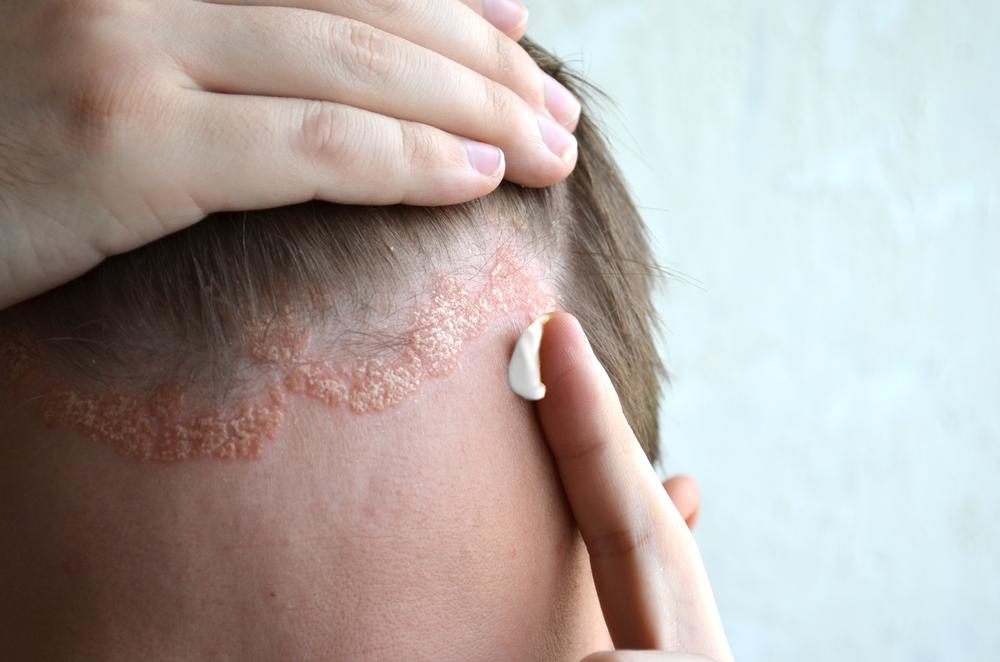 pikkelysömör kezelése népi gyógymódokkal otthon a fejen