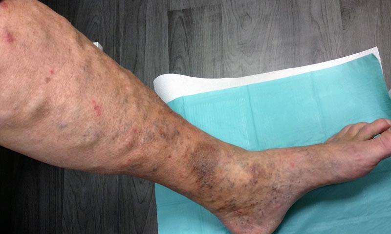 vörös foltok a lábon, mint az erek)