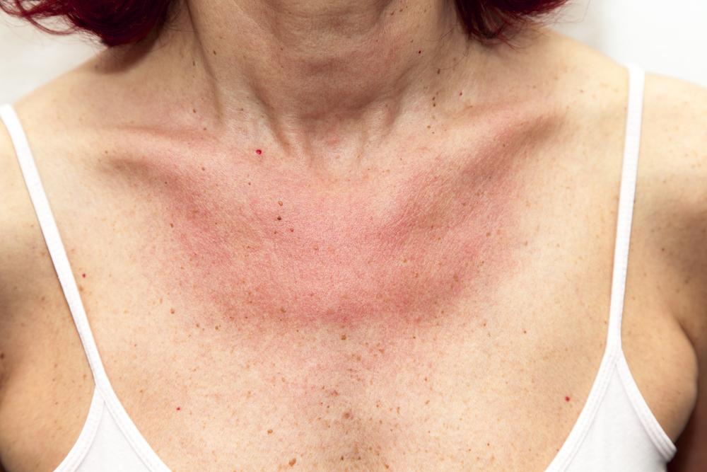 Vörös, viszkető foltok jelentek meg a bőrén? - Vörös foltok jelentek meg az arcon és a kezeken