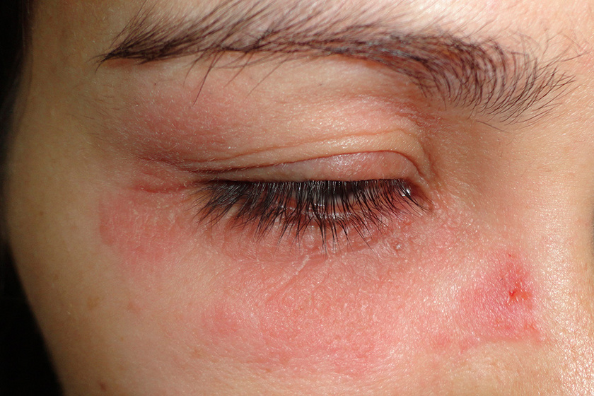 vörös foltok a szem közelében lévő bőrön