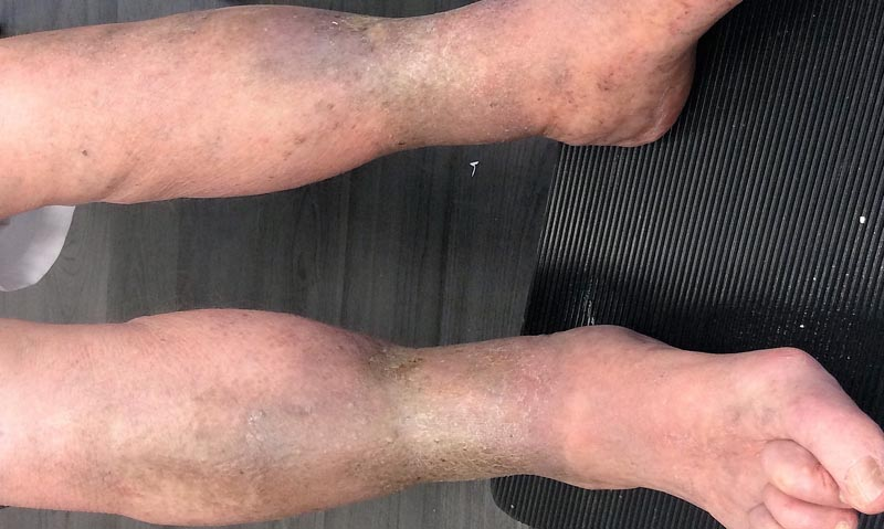 leégés után vörös foltok jelentek meg a lábakon fejbőr pikkelysömör és kezelésük