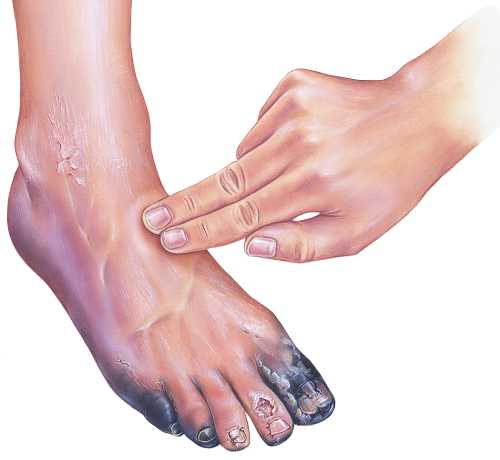 vörös foltok cukorbetegséggel a lábakon)