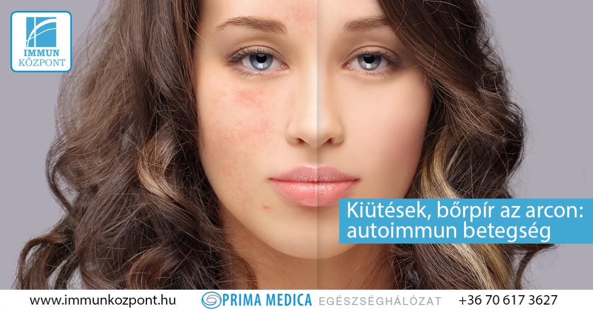 vörös foltok jelentek meg az arcon a napon pikkelysömör kezelése összeesküvés