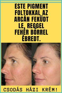 vörös foltokkal ébredt az arcán pikkelysömör kezelése és pegano diéta