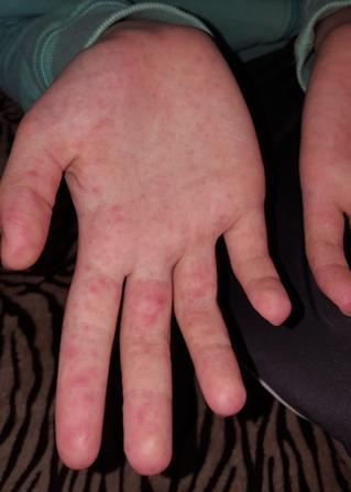 vörös pikkelyes foltok a kezeken az ujjak között)
