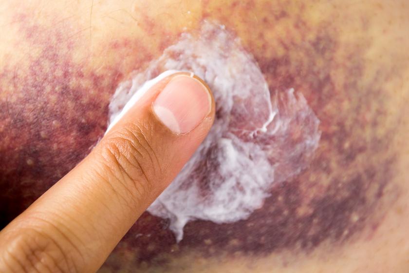 zúzódások és vörös foltok a bőrön pikkelysömör tünetei és kezelése bőr sapka