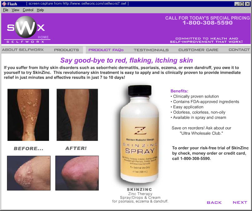 skin cap spray for psoriasis reviews