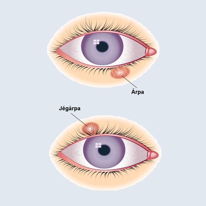 vörös folt a szemgolyón hogyan kell kezelni kezeli az ürömöt pikkelysömörre