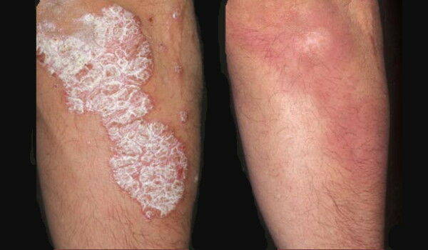 vörös megemelt foltok a lábakon és a karokon pikkelysömör kezelése hagyma