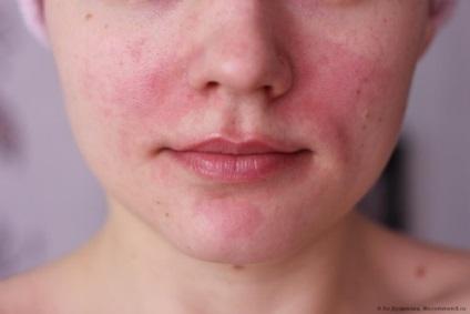 vörös foltok jelennek meg az arcon reggel)
