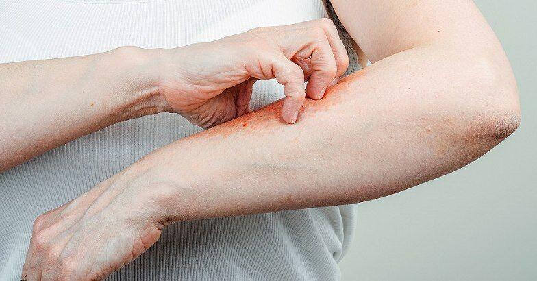 Pikkelysömör fotó az otthoni kezdeti stádiumú kezelésről - A pikkelysömör tünetei