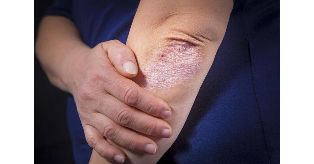 Psoriasis, hogyan néz ki és hogyan kell kezelni