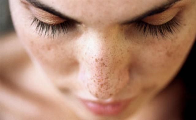 Eucerin®: A bőrről | Öregségi foltok Vörös napfoltok az arcon