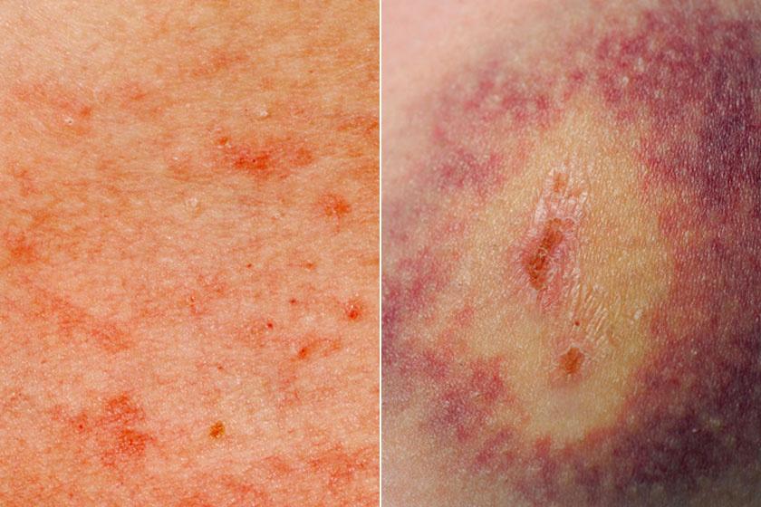 a bal oldalon vörös foltok fájnak a bőrön)