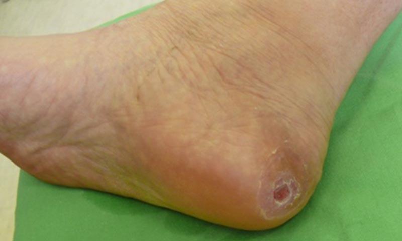 vörös lábfoltok kezelése cukorbetegségben a lábakat vörös foltok borítják és viszketnek