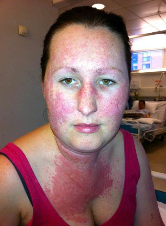 az arcát vörös foltok borították)