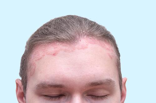 hogyan kell kezelni a pikkelysömör az arc fotó