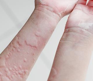 vörös foltok a kéz bőrén.)