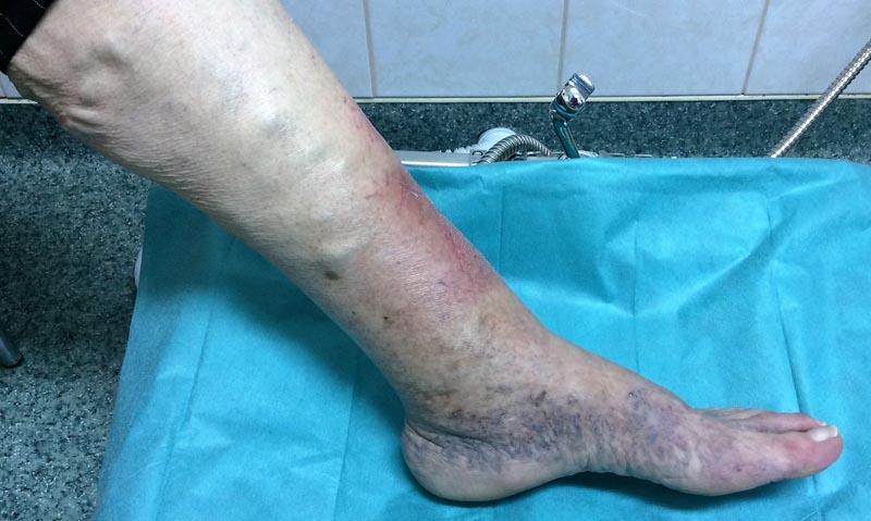 a láb duzzanata és egy piros nagy folt