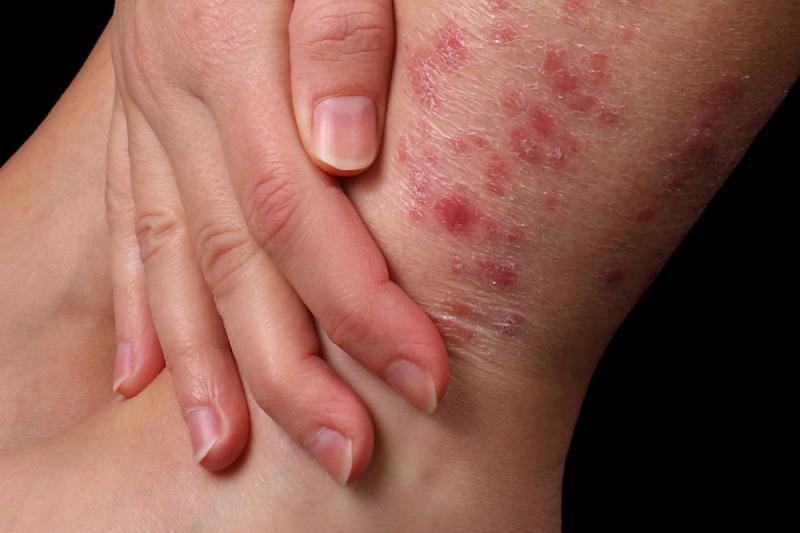 Milyen betegségre utalnak a vörös foltok? - HáziPatika Piros foltok a kezén a nap fotó
