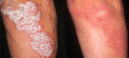 excimer lézeres pikkelysömör kezelése orális gyógyszer pikkelysömörhöz