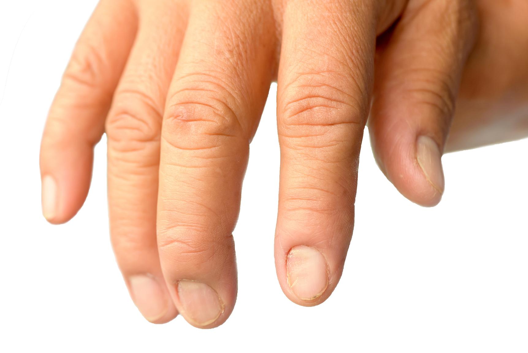 amarant olaj kezelése pikkelysömörhöz vörös foltok a sertésekben a bőrön