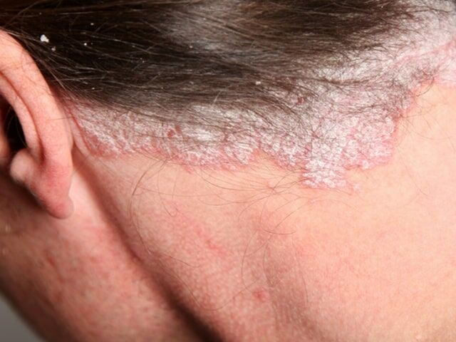 fototerápia pikkelysömör kezelése