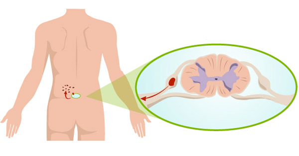Piros jelenik meg a testen - Herpesz