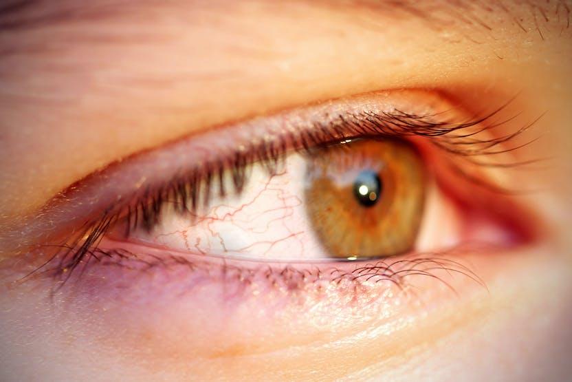 vörös folt a szem alatt, hogyan lehet eltávolítani)