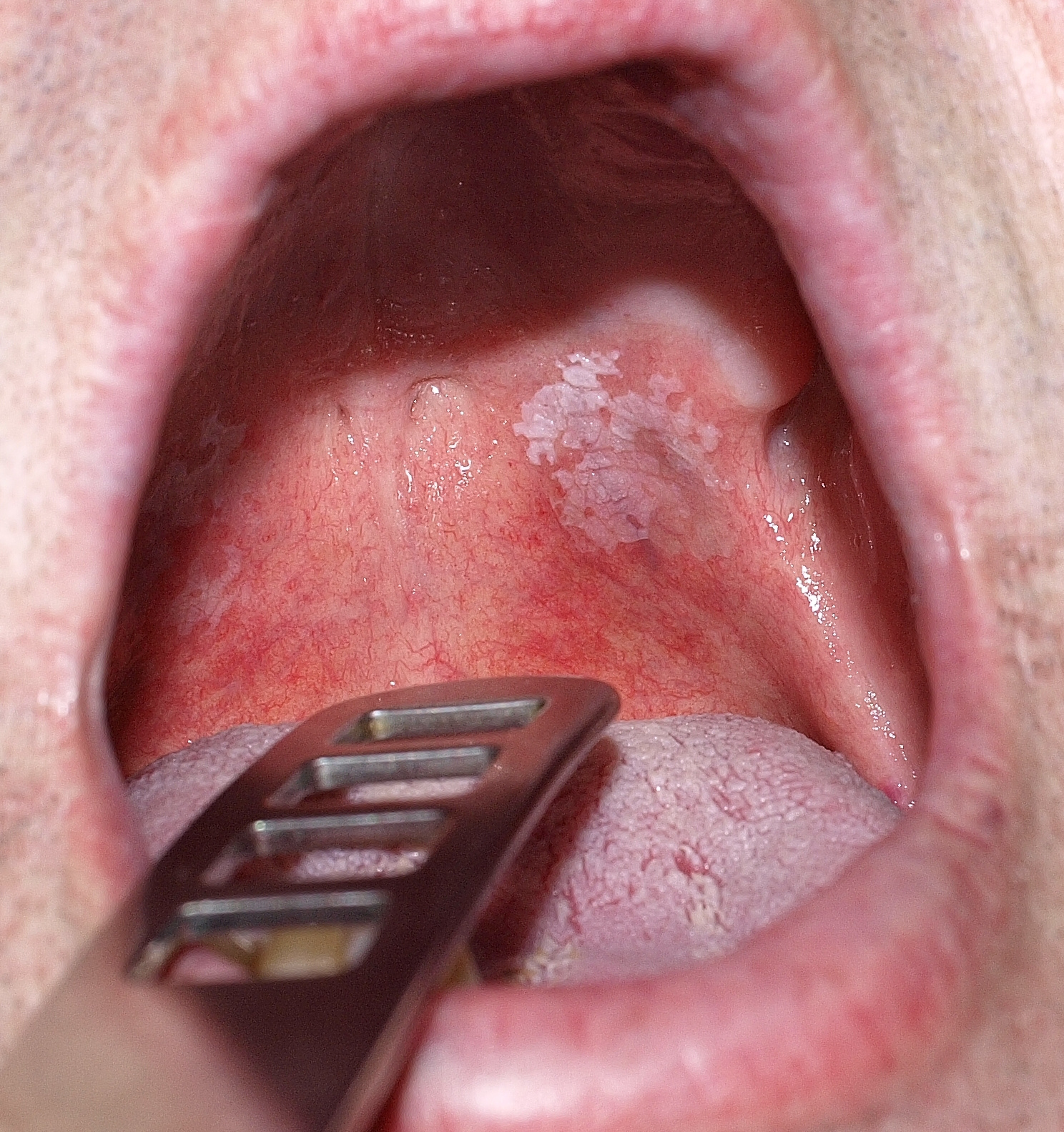 vörös foltok a szájpadon felnőttek kezelésében)