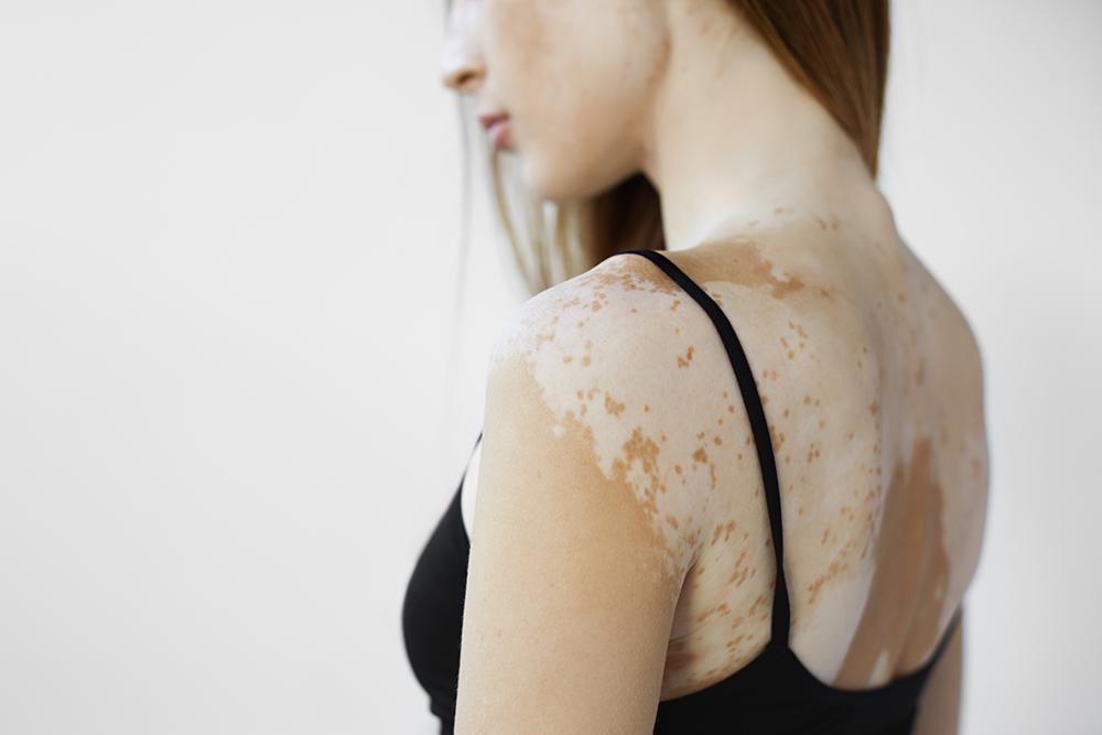 Vitiligo - Egy titokzatos bőrbetegség