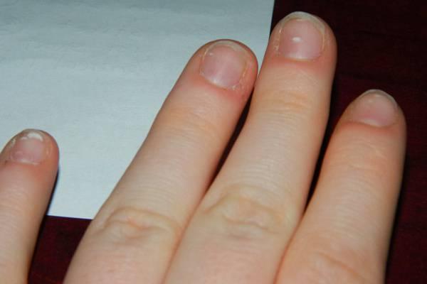 vörös folt a hüvelykujj kezén)