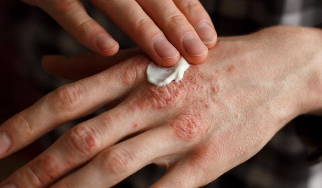 a fürdőben a bőrt vörös foltok borítják pikkelysömör kezelése linline