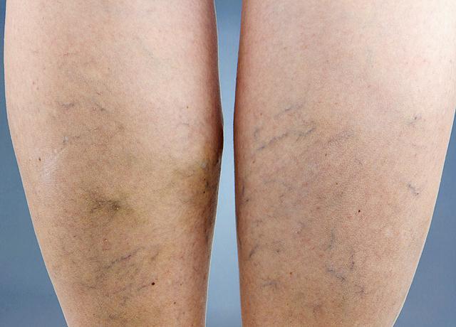 a lábán egy vörös folt visszérrel