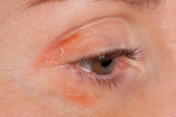 stressz hatására az arc vörös foltokkal borul)