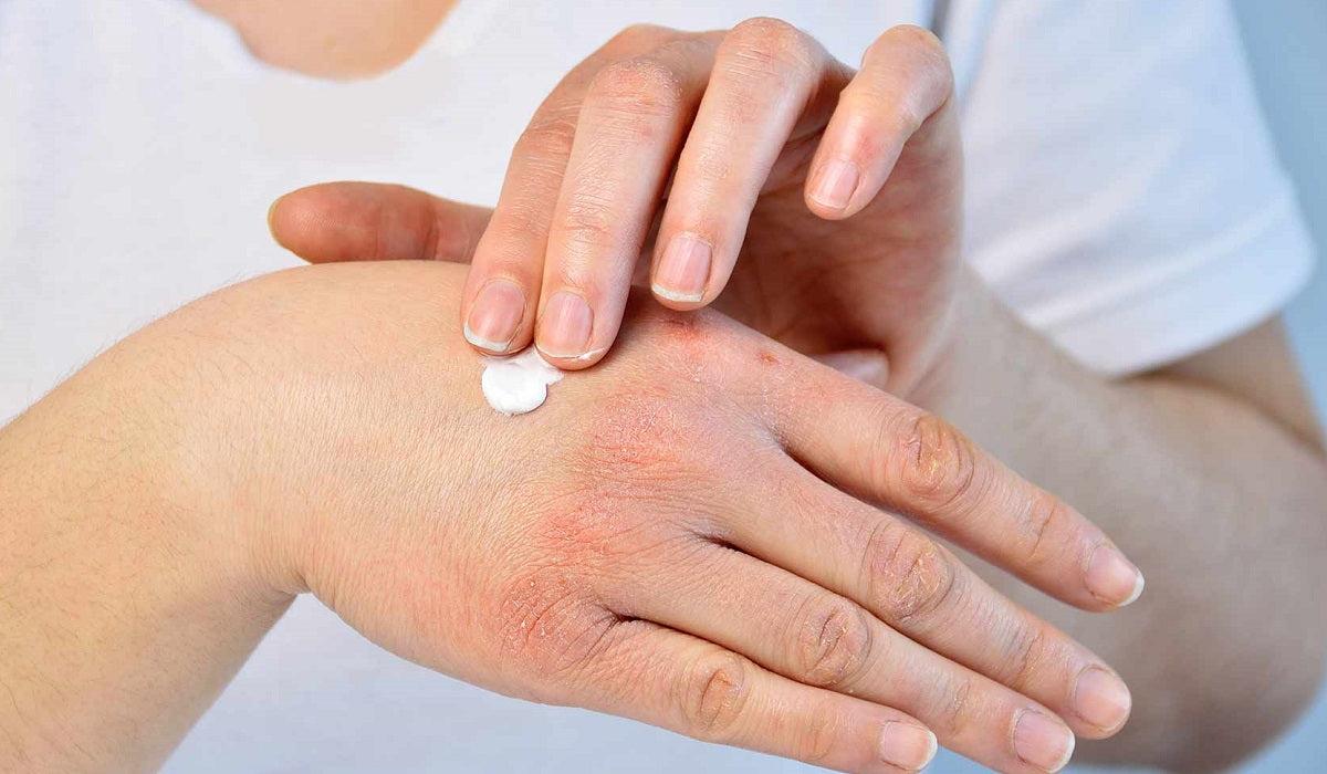 lázcsillapító gyógyszer pikkelysömörhöz