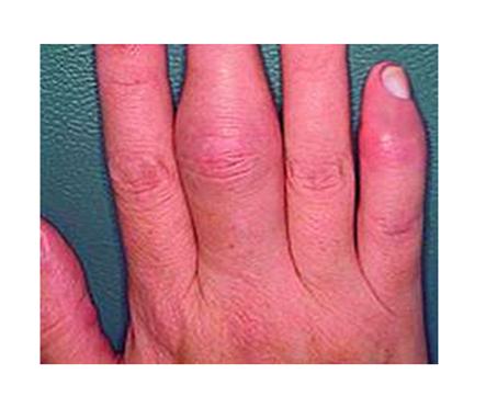 pikkelysömör az ujjakon