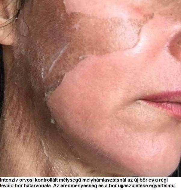 Vörös folt az arcon hámlasztó kezelés. Mi kell tudni a rozácea betegségről?