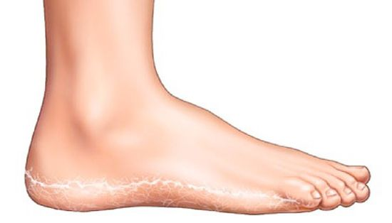 minden lábát vörös foltok borították