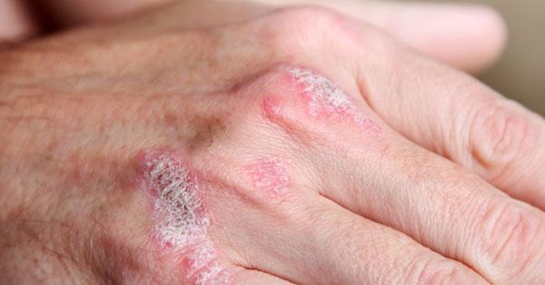 vörös folt a kezén melegebb)