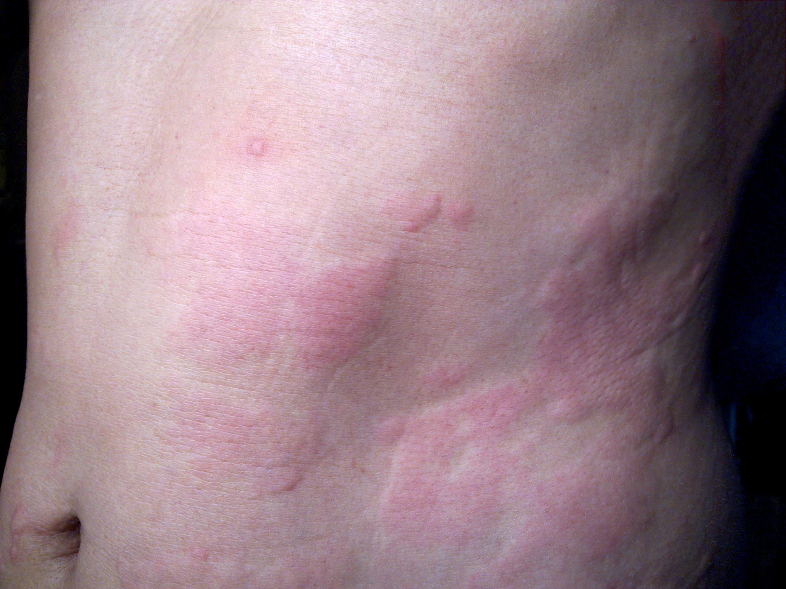Pöttyök, foltok, csíkok: tünetek a bőrön - koronakredit.hu