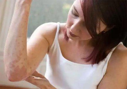 varázslók pikkelysömörének kezelése psoriasis creme etos