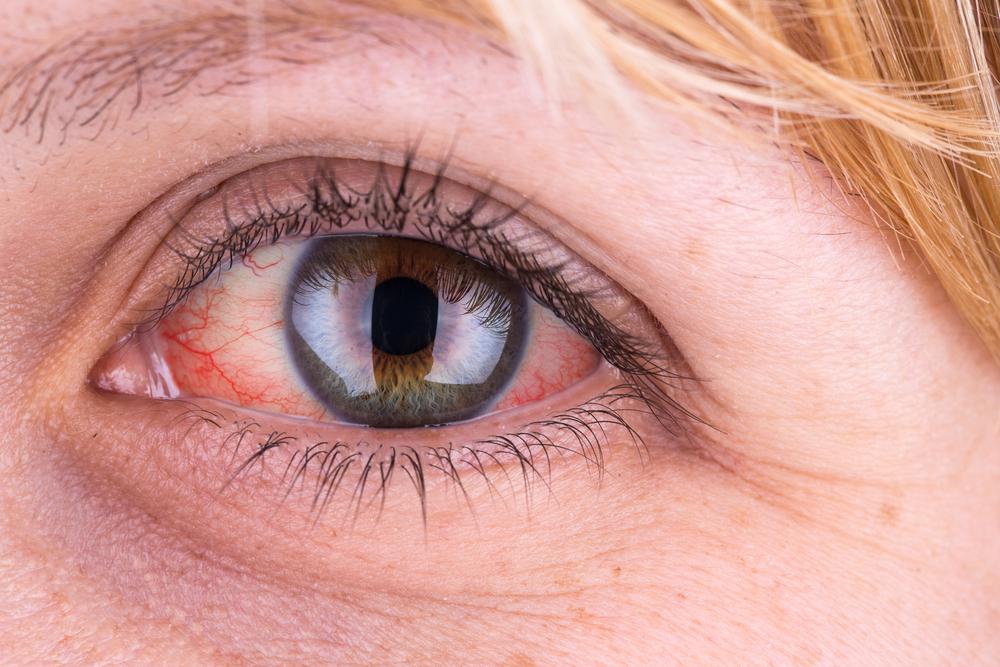 a szem közelében vörös folt viszket)