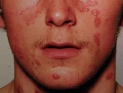 az arcán nagy piros foltok viszketnek népi gyógymódokkal kezeljük a pikkelysömör