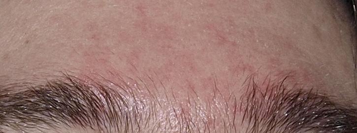 az arc bőrének és vörös foltok hámlása)