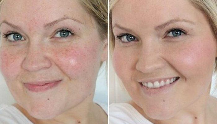 A 10 leggyakoribb arctisztítási hiba Szépség-Kozmetika Guinot szépségszalon Budapest