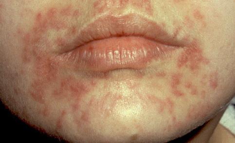 Vörös foltok az arcon lehúzódnak. Piros foltok a testen - mi az oka a bőrön való megjelenésnek?