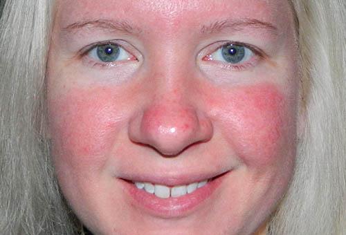 az orr közelében lévő férfiaknál az arc vörös foltjai lehámlanak