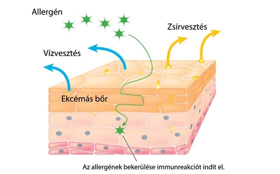 hogyan lehet meggyógyítani az arcon lévő vörös foltokat a horzsolásoktól)